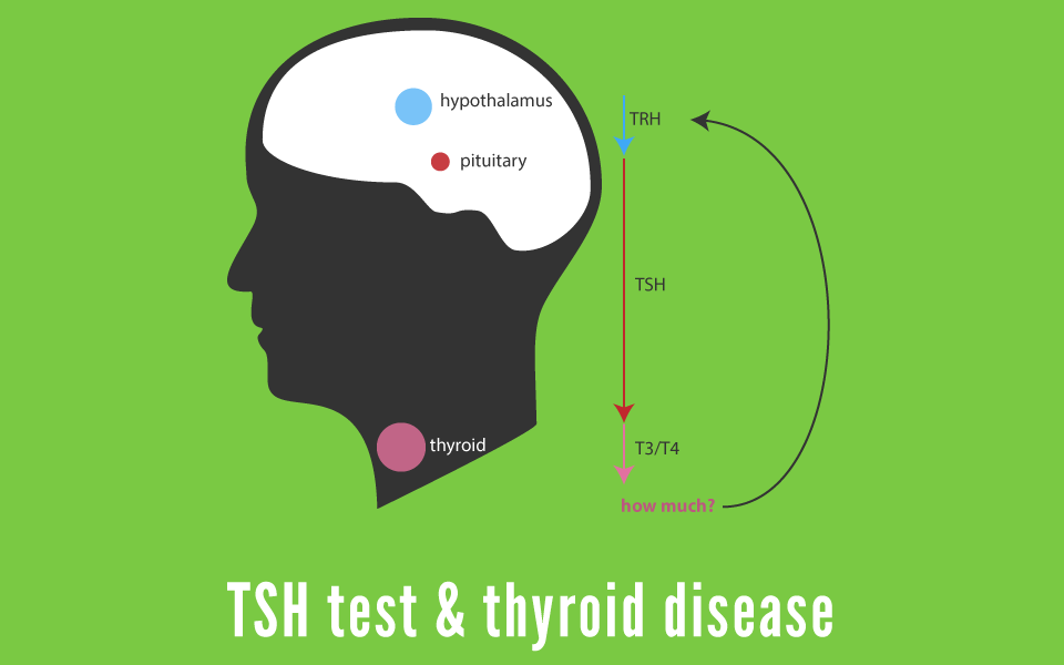 TSH Test | What is a TSH Test for Thyroid disease?